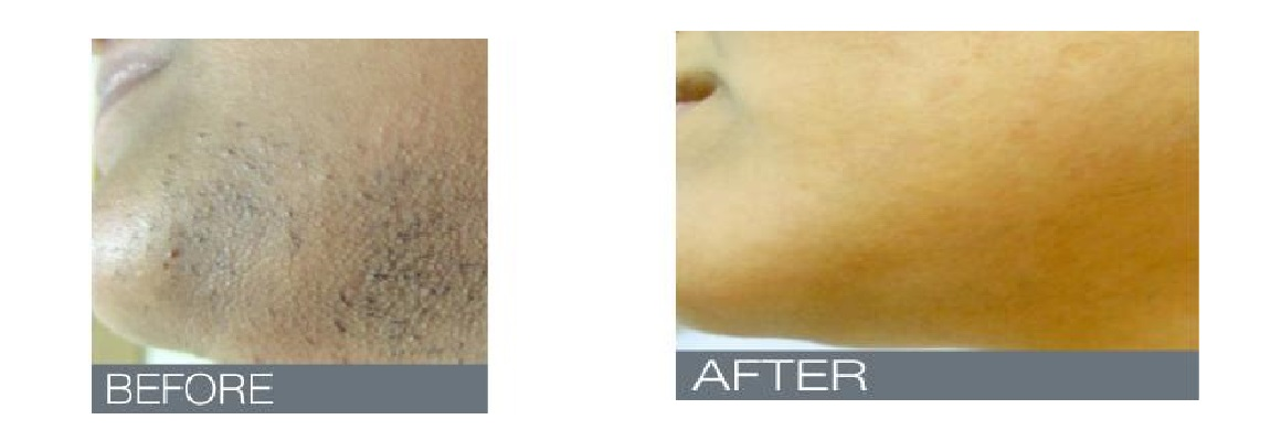 Electrolysis Hair Removal Advanced Skin Clinic